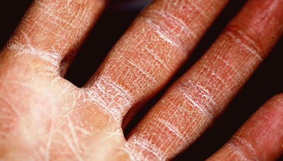 Durante época de frío incrementan molestias por resequedad en piel